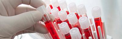 гематология, анализ крови на гепатит а