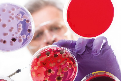бактерии, возбудитель тифа