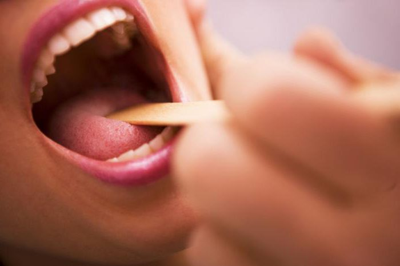 дифтерия горла