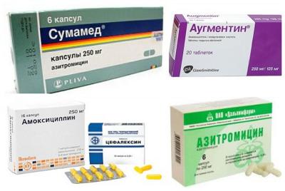 таблетки от стрептококка